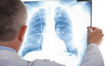 Asbestos exposure connected to these 3 types of mesothelioma